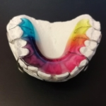 Rovnatka, braces, ортодонтический аппарат